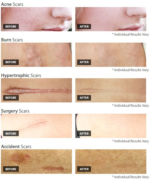 Showing the results before and after using the product for least 6 months. Positive reviews from users
