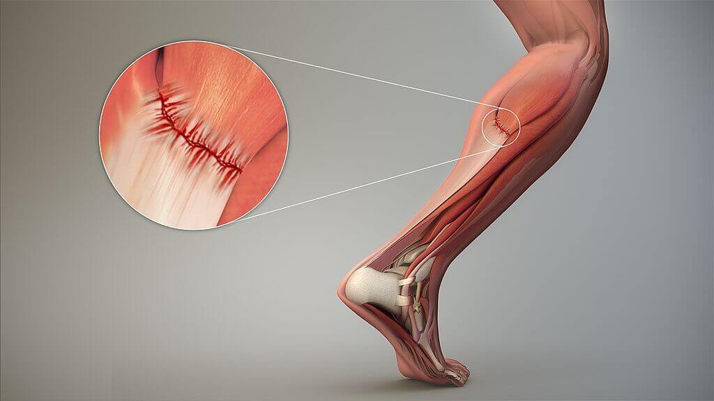 Muscle damage 3d image